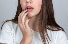 Герпетичний стоматит у дорослих – як виглядає і чим лікувати