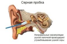 Як правильно чистити вуха самостійно: способи та рекомендації