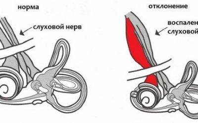 Кохлеарний неврит слухового нерва: симптоми, лікування та діагностика
