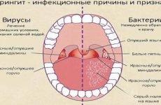 Лікування фарингіту – найбільш ефективні народні засоби