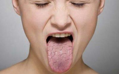 Відчуття сухості в горлі – причини і лікування