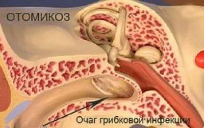 Отомикоз (грибок у вухах): симптоми, причини і лікування