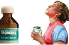 Полоскання горла перекисом водню при ангіні – ефективність методу, пропорції