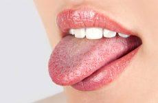 Прищі в горлі – білі пупиришки на задній стінці