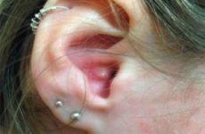 Прищі у вухах: причини, лікування, профілактика
