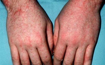 Скарлатина у дорослих – симптоми, особливості та лікування