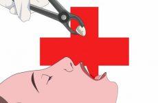 Видалення мигдаликів при хронічному тонзиліті – потрібно видаляти