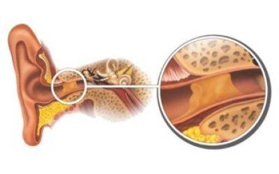 Вушні краплі від сірчаних пробок: найбільш ефективні і перевірені