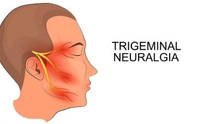 Запалення трійчастого нерва: симптоми, причини і лікування