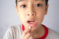 Заразний стоматит для оточуючих і як він передається