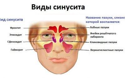Синусит і гайморит: в чому різниця, способи лікування
