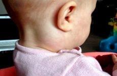 Збільшені лімфовузли на шиї у дитини: причини, симптоми і лікування
