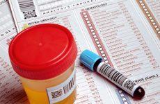 Чи можна робити загальний аналіз крові при застуді і як правильно підготуватися до аналізу