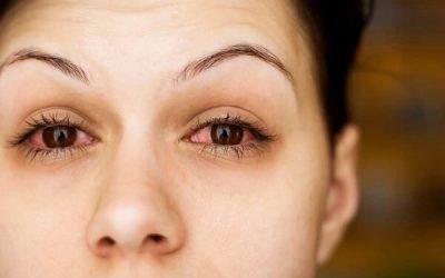 Чому з'являється біль в очах при застуді: офтальмологічні ускладнення при ГРЗ та їх лікування