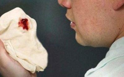 Причини кашлю з кров'ю при застуді: методи діагностики та лікування